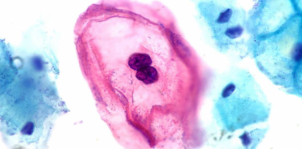 Papillomavirus maladie infectieuse. Navigare principală
